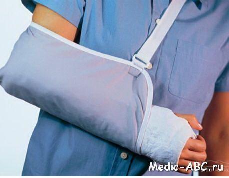 3 этапа восстановления руки после перелома