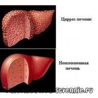 Алкогольный цирроз печени: симптомы, диета, лечение, прогноз