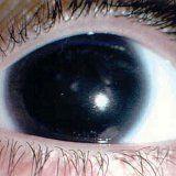 Аниридия отсутствие радужки глаза