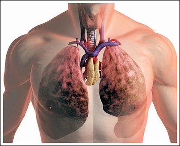 Анкилоз височно - нижнечелюстного сустава