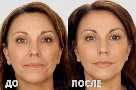 Гиалуроновая кислота до и после