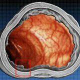 Болезнь крона этиология и патогенез