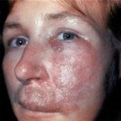 boala erizipel - simptome și tratament