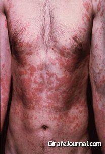Чем лечить аллергический дерматит