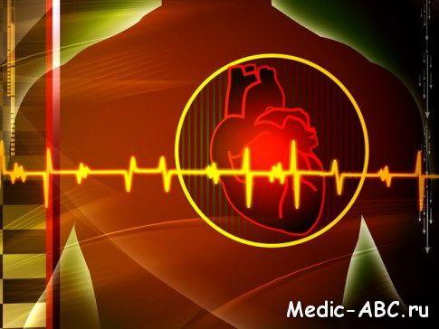 Чем лечить аритмию