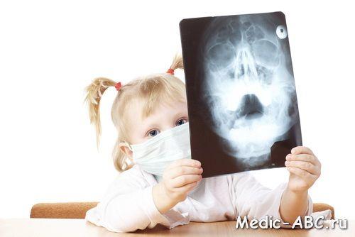 Niż leczyć zapalenie zatok u dzieci