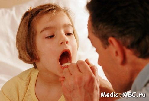 Чем лечить горло у ребенка
