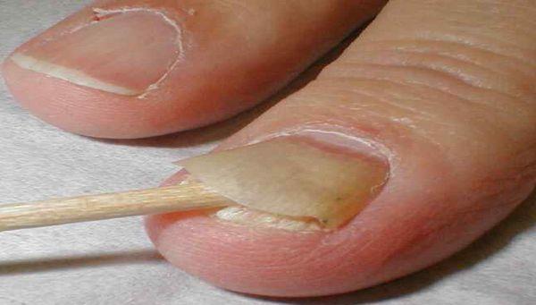 Чем лечить грибок ногтей на ногах - народные средства и консервативное лечение