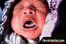 Чем лечить молочницу во рту