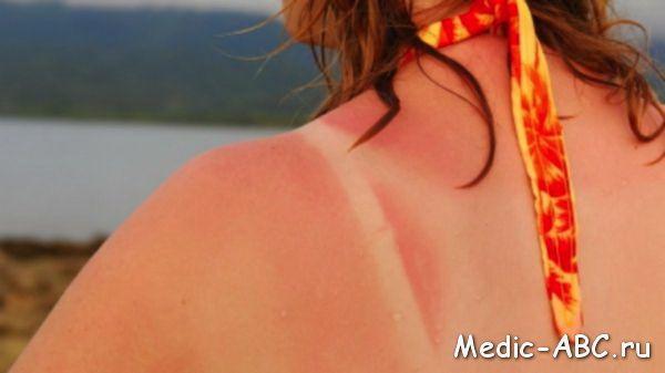 Чем лечить солнечные ожоги