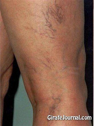 Чем лечить варикоз на ногах