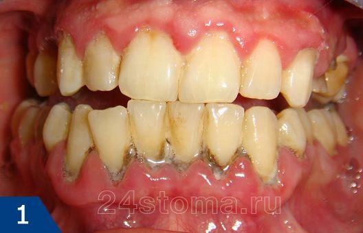 Что делать, если десна отходит от зуба