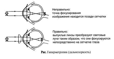 gipermetropiya-glaz_3