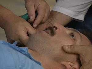 Эпилепсия, сипмтомы у взрослых
