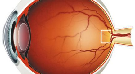 нарушение зрения при миопии