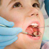 Dziecko próchnica zębów mleko