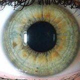 Диагностика болезней по радужке глаза