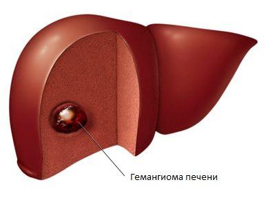 Гемангиома печени - лечение
