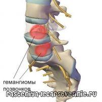Гемангиома позвоночника – лечение, симптомы, операция, противопоказания, причины