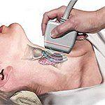 Гипотиреоз клиника диагностика лечение