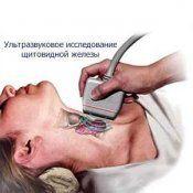 Гипотиреоз. Симптомы, лечение, диагностика заболевания щитовидной железы