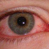 Глазная болезнь вирус герпеса