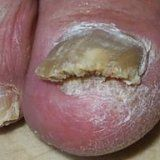 Грибковые поражения ногтей у человека