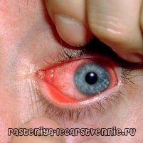 Хламидиоз: симптомы, лечение, причины возникновения, профилактика