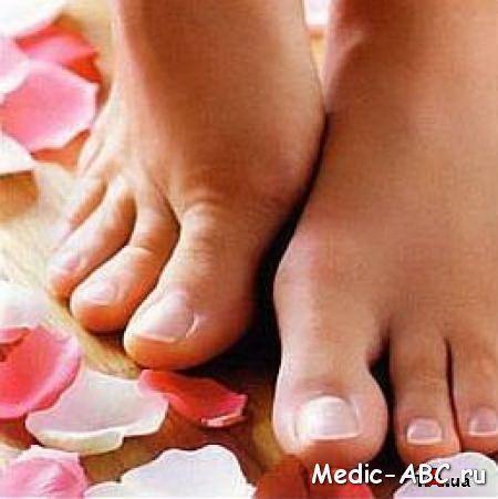 Инфекции кожи - поражение грибком