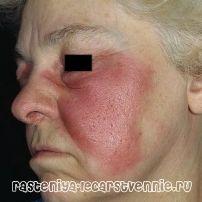 Infectarea exterior piele erizipel boala, simptome, tratament