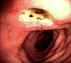 Ulcer duodenal, dieta
