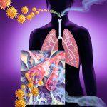 Эмфизема легких клиника и лечение