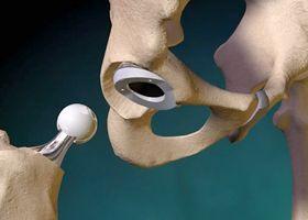Операция эндопротезирования суставов