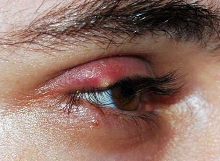 Как быстро вылечить ячмень на веке глаза