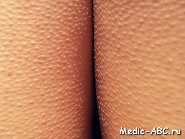 Как избавиться от гусиной кожи