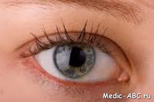 Как избавиться от ячменя на глазу быстро
