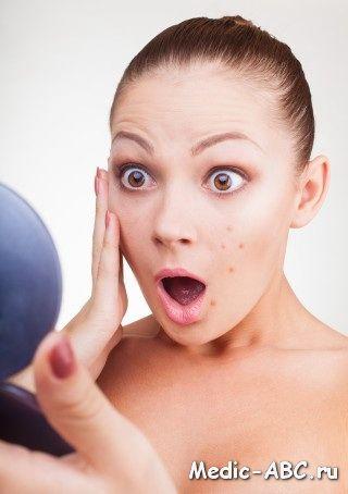 Как избавиться от угрей на лице