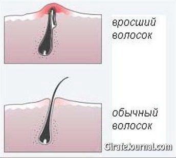 Как избавиться от вросшихся волос?