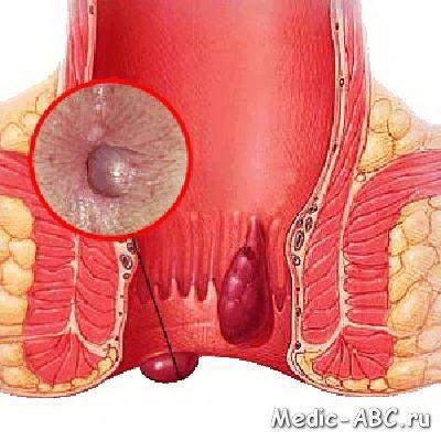 Jak skutecznie leczyć choroby wrażliwe (hemoroidy)?