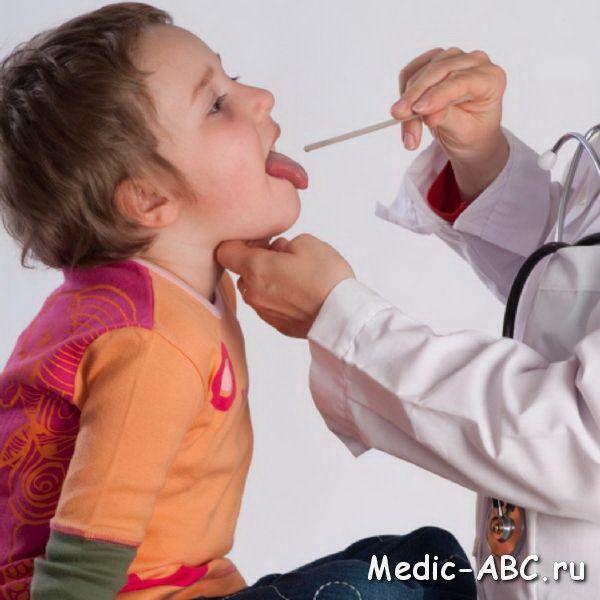 Как лечить ангину у ребенка
