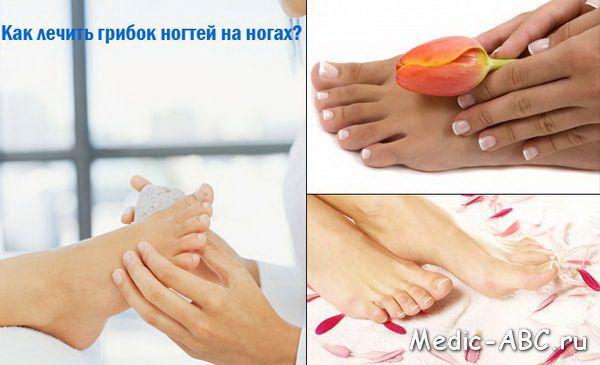 Как лечить грибок стопы - противомикозные препараты