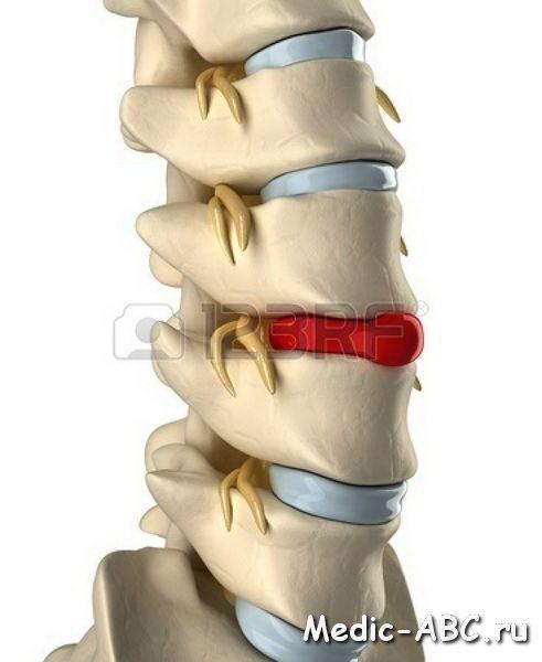 Как лечить грыжи спины