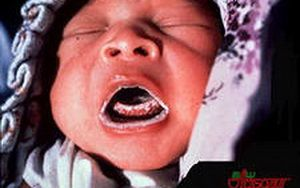 Cum de a trata o infecție drojdie în gura copiilor