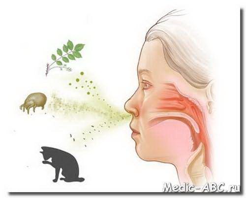 Jak leczyć ostry nieżyt nosa