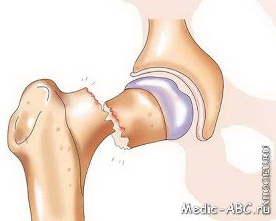 Как лечить открытый перелом