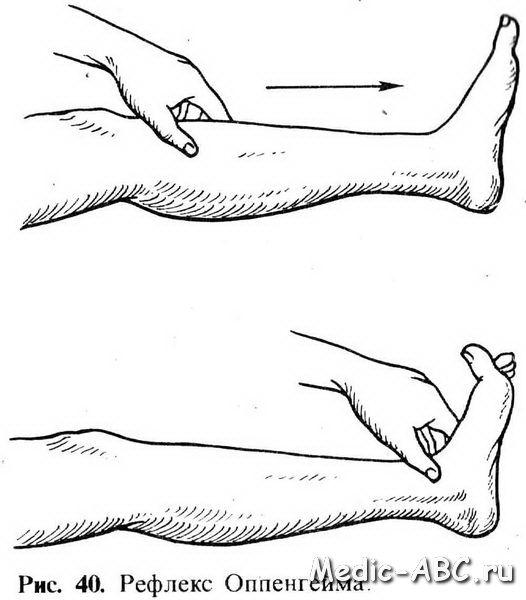 Как лечить растяжение стопы