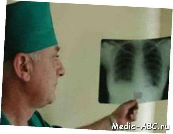 Как лечить туберкулез
