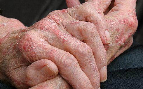 Cum de a vindeca eczeme pe maini