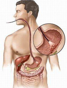 Как избавиться от газообразования в кишечнике