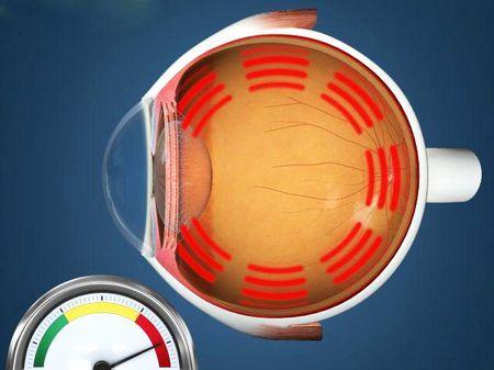 Какая норма глазного давления нормальная у человека